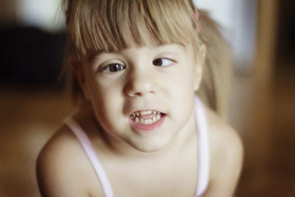 Porträt von einem schielenden Mädchen