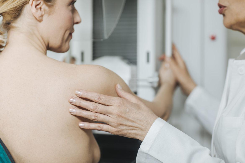 Rückenansicht einer Frau beim Mammografie Screening