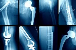 Röntgenaufnahmen diverser Prothesen.